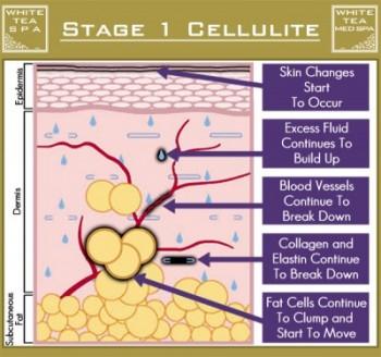 เซลลูไลท์ cellulite stage 1