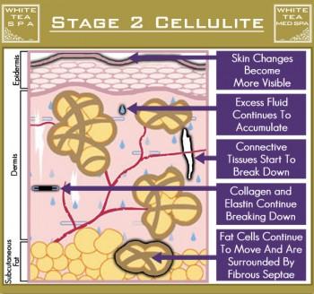 เซลลูไลท์ cellulite stage 2