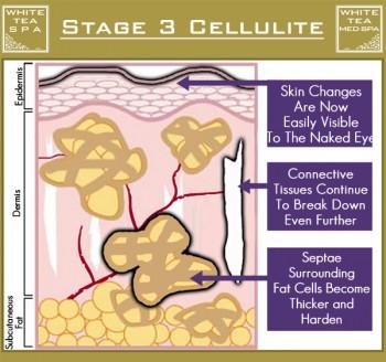 เซลลูไลท์ cellulite stage 3